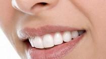 Biện pháp khắc phục răng ố vàng