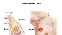 Phòng chống ung thư vú có thể tiến hành ngay từ khi còn nhỏ