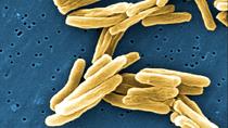 10 khuyến cáo của Tổ chức Y tế thế giới về đề kháng sinh