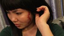 Vụ cô gái bị xăm rết lên mặt: Phải cắt bỏ khối sẹo lồi ở mặt và ngực