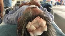 Nhóm côn đồ ở Quảng Ninh đánh trọng thương 3 người dân