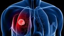 5 dấu hiệu đầu của ung thư phổi