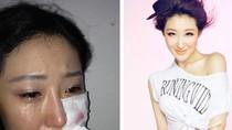 Nữ diễn viên bị chó ngao Tây Tạng cắn nát ngực áo, mặt be bét máu