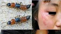 Video: Tìm hiểu kiến ba khoang và cách phòng chống