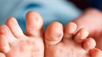 Đã có hơn 53.000 trường hợp mắc bệnh chân tay miệng