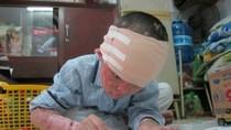 Rớt nước mắt hình ảnh cả gia đình bé 4 tuổi bị tạt axít
