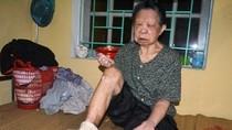 """Kinh hoàng 20 bệnh nhân phong Hà Nội bị bỏ đói và """"ép"""" ăn thịt sống?"""