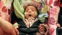 Em bé sơ sinh nhỏ bằng nắm tay