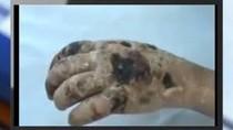 """Video: Ma túy """"cá sấu"""" ăn mòn cơ thể con nghiện từ trong ra ngoài"""