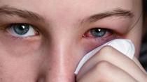 Bộ Y tế hướng dẫn người dân phòng bệnh đau mắt đỏ