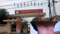 Phòng Giáo dục Sầm Sơn bác bỏ thông tin Hiệu trưởng bóp cổ 2 học sinh
