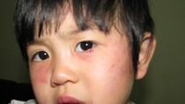 Trẻ hơn 2 tuổi bị cô giáo đánh thâm tím mặt
