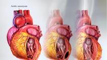 Cách kiểm soát bệnh cao huyết áp không cần dùng thuốc