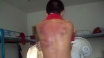 Sinh viên Việt Nam ở Australia lại bị đánh trọng thương.