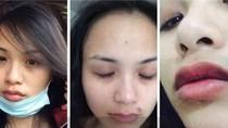 Hoa hậu Diễm Hương tung loạt ảnh tố bị chồng cũ hành hung