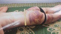 Nhiều tình tiết mới trong vụ bạo hành dã man ở Vĩnh Phúc.