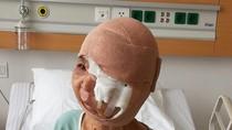 """Cứu chữa thành công người phụ nữ có khối u """"quái ác"""" dài 40cm"""