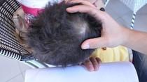 Công an vào cuộc vụ bé 3 tuổi bị 'chấn động não'