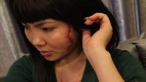 Vụ cô gái bị xăm hình quái vật: gia đình có thể xin giảm án cho bà chủ