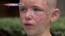 Nam sinh 12 tuổi bất chấp mạng sống để cứu bà