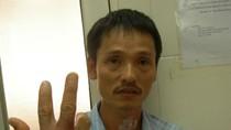 Hà Nội: Đã có người nhập viện vì bị chuột cắn