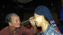 Ảnh: Những cách chữa bệnh kỳ dị ở Việt Nam khiến Tây khóc thét