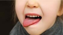 Lưỡi có màu bất thường, bệnh gì?