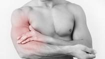 Đau cánh tay cảnh báo bệnh gì?