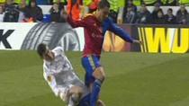 Cận cảnh chấn thương gãy gập cổ chân kinh hoàng của Gareth Bale