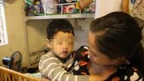 Vụ bé 5 tuổi bị xâm hại: Cháu Hạnh sẽ được phẫu thuật hở hàm ếch