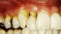 Những bệnh răng miệng thường mắc phải và cách phòng tránh