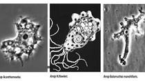 Điểm mặt các amip tự do gây viêm não