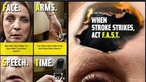 Các dấu hiệu, triệu chứng trước khi bị đột quỵ, cách phòng tránh