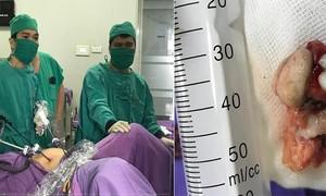 Cắt u quái cho bé gái 12 tuổi tại Quảng Ninh