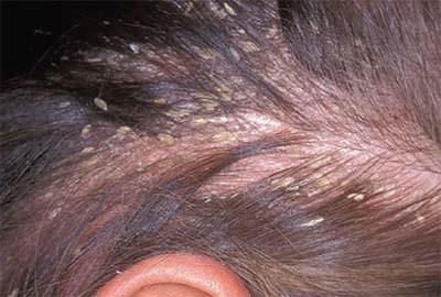 Chùm ảnh: 13 bệnh ngoài da hay gặp nhất